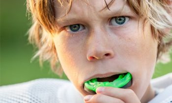 mouthguards_1 Bloomington, MN Dentist | Weddell Dental